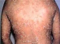背部银屑病初期表现有哪些