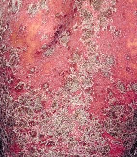 成年银屑病的初期症状是什么