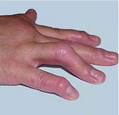 红皮病型牛皮癣早期症状有哪些