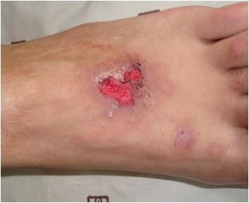 脓疱型银屑病康复前的症状有哪些