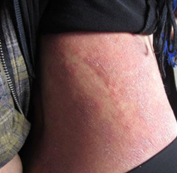 银屑病给患者带来的危害有哪些